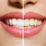 Stained-Teeth-feature